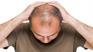 درمان تخصصی ریزش مو