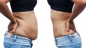 کاهش سایز و لاغری موضعی