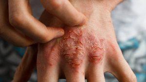 تشخیص و درمان بیماری درماتیت سبورئیک