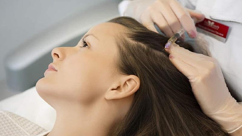 درمان ریزش مو با استفاده از مزوتراپی