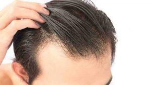 چگونگی کلاه گذاشتن بعد از کاشت مو
