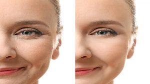 درمان افتادگی متوسط پوست
