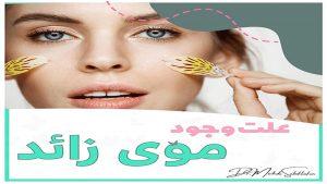بهترین متخصص پوست و مو اصفهان   علت وجود موی زائد