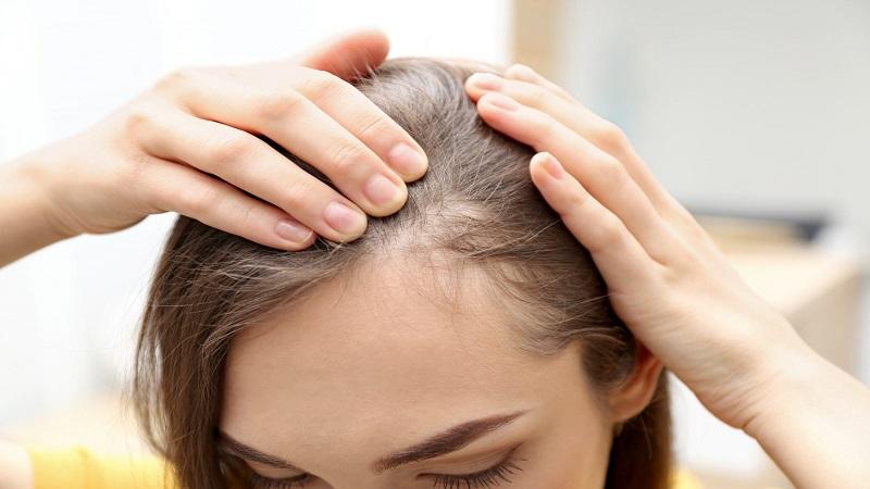 تشخیص علت ریزش مو